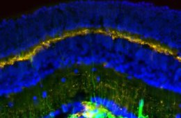 Image shows glial cells in a mouse retina.