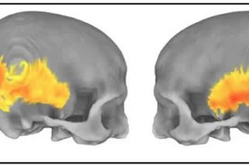 Image shows skull imaging.