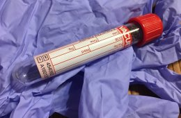 Image shows a blood sample.