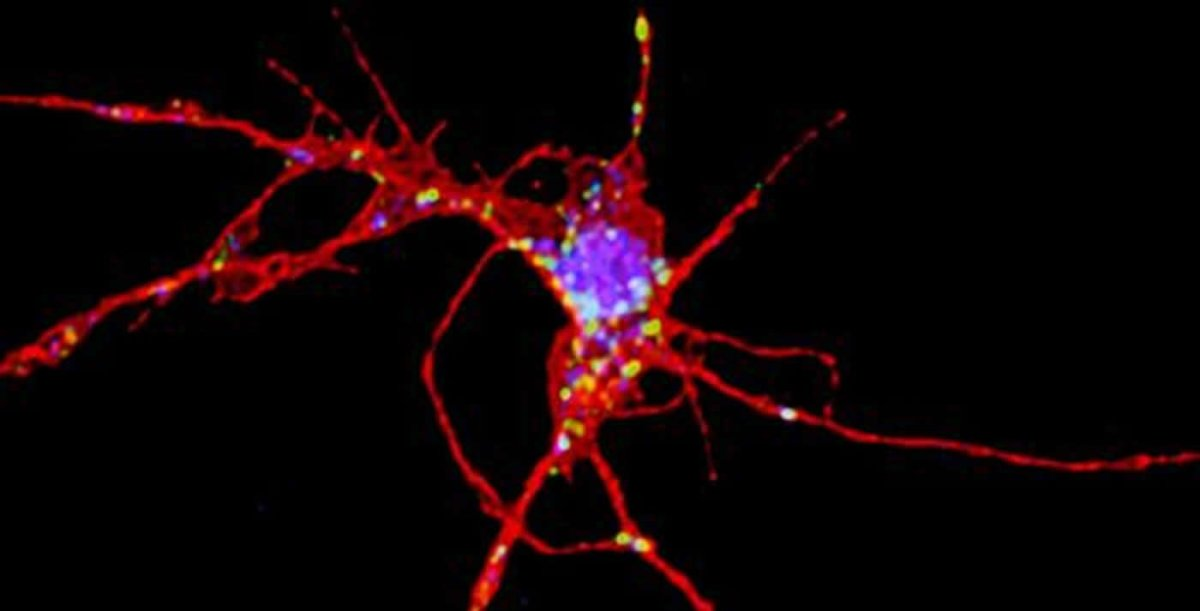 Image shows a neuron.
