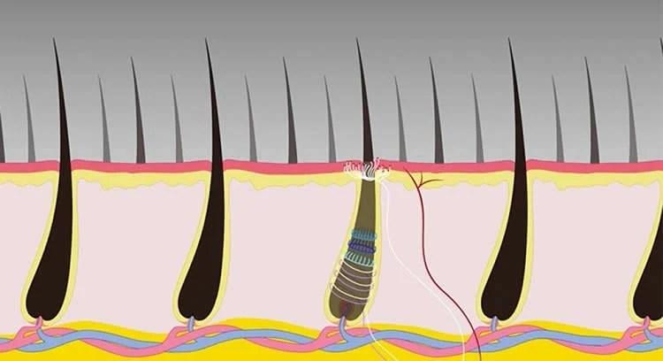 Image shows hair follicles.