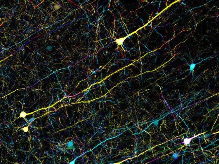 This image shows Confocal microscopy of mouse brain cells.