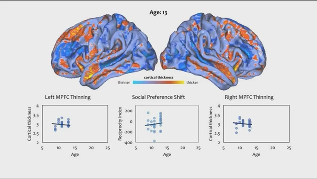 Image shows the brain structural changes at age 13.
