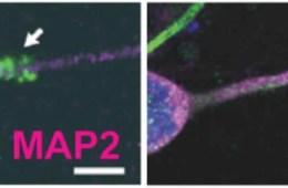 Image shows RNA.