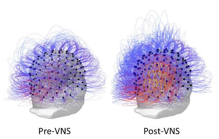 Image shows the increased connectivity following VNS.