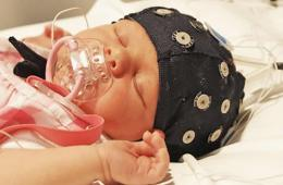 Image shows a baby in an eeg cap.