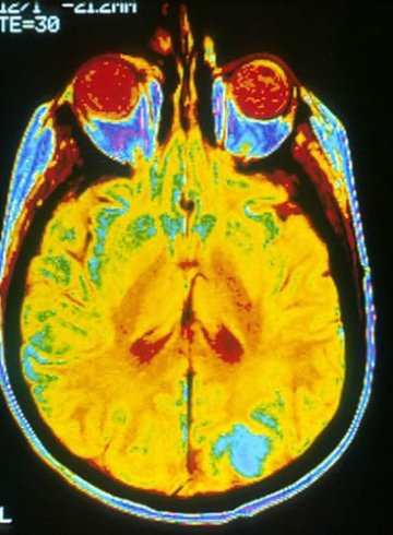 Image shows a single image of a human brain using a magnetic resonance imaging (MRI) machine. A bright blue color where brain cancer metastasizes in the occipital lobe.