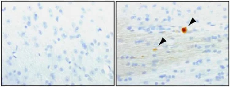 Image shows dopamine neurons.