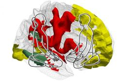 Image shows people sitting in front of a brain.