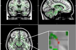 Image shows a brain scans.