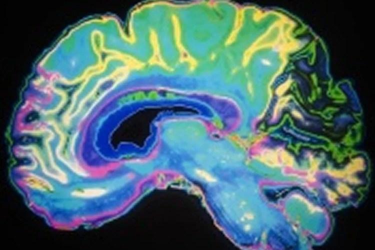 a brain