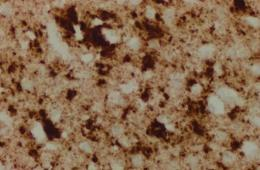 Image shows a brain of a CJD patient.