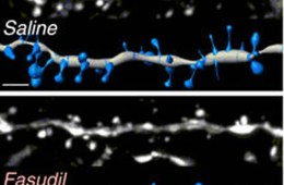 dendrites are shown