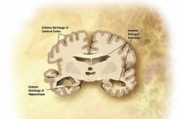 Image shows an alzheimer's brain slice diagram.