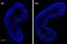 Image shows intestinal slices.