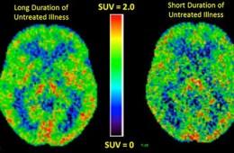 pet brain scans
