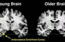 Image shows brain scans with the anterolateral entorhinal cortex highlighted in yellow.