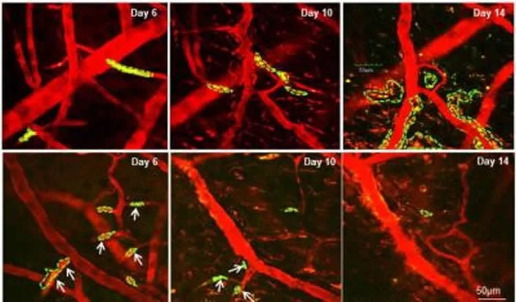 Compound that Prevents Breast Cancer Cells From Activating in the Brain Identified