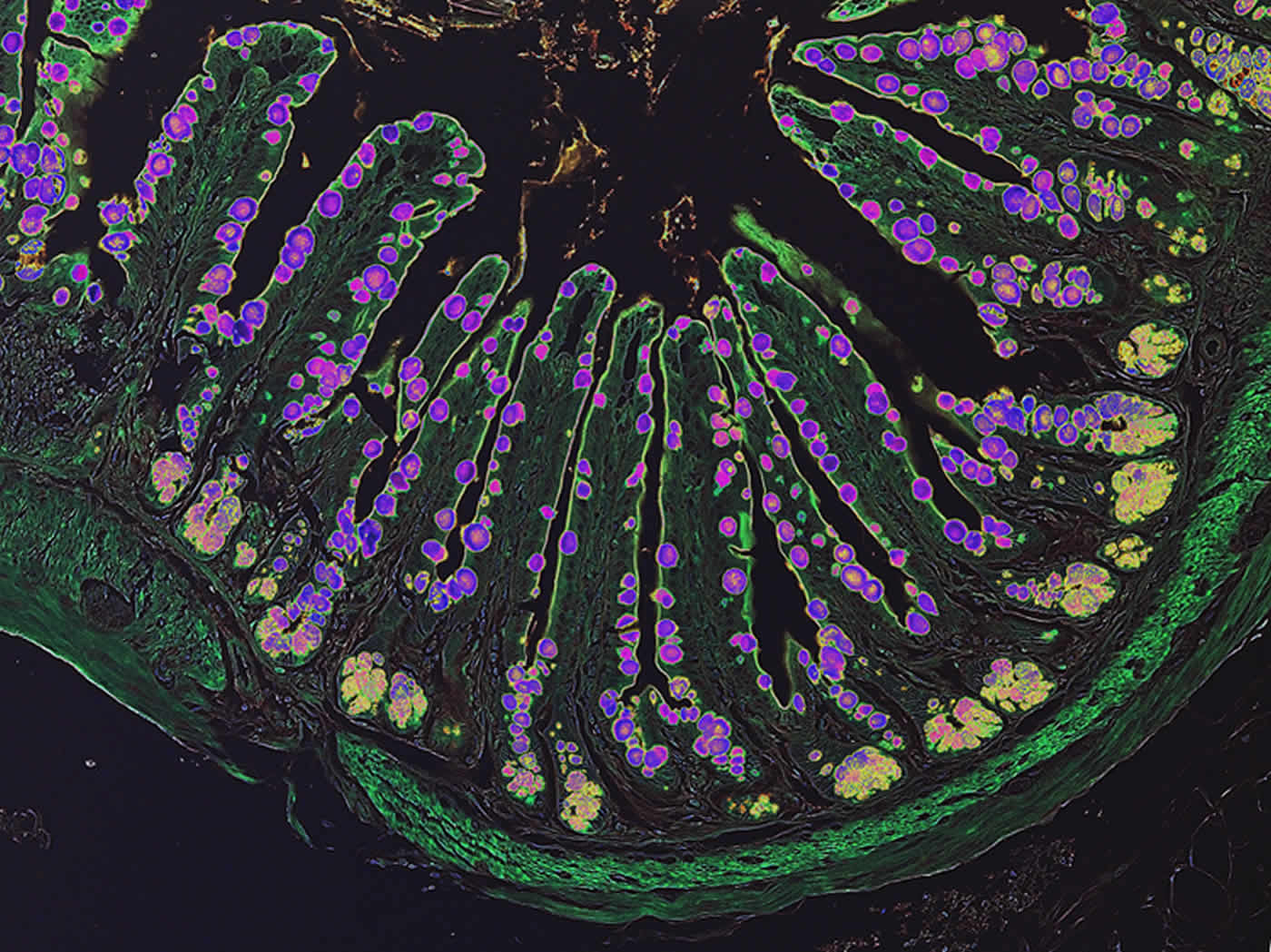 Image shows intestinal inflammation.