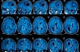 MRI scans from a person with glioblastoma brain cancer
