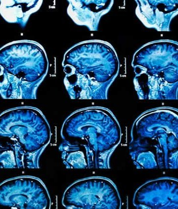 Brains Of Young People With Severe >> Neuroscience News Brain Psychology Ai Neurology And Cognitive