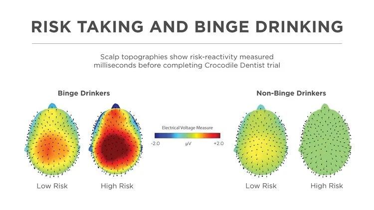 EEG output of binge drinkers vs non binge drinkers when taking risks