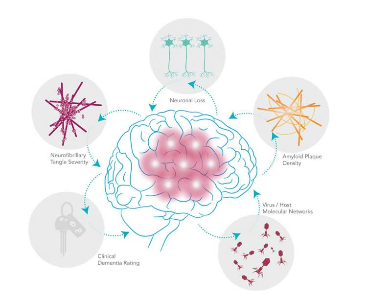 a diagram shows how the virus affects the brain, leading to the development of Alzheimer's