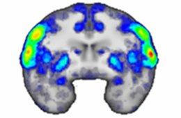 a brain scan