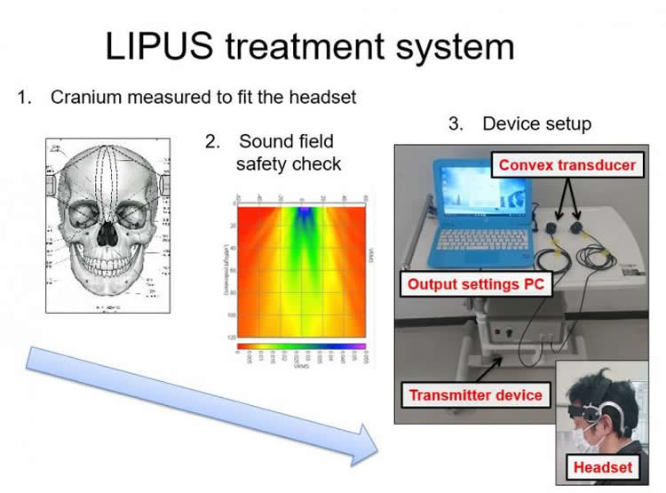 the LIPUS system