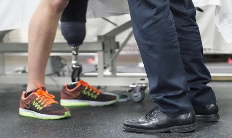 Amputees Feel As Though Their Prosthetic Limb Belongs To