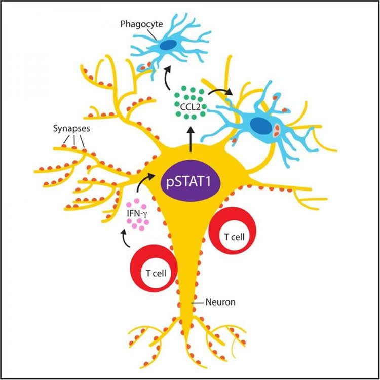 When Neurons Turn Against Themselves Neuroscience News
