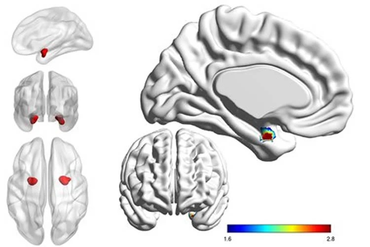 Looking inside the brain to distinguish bipolar from depression with bipolar disorder the left side of the amygdala is less active and less connected with other parts of the brain than in people with depression ccuart