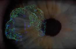 an eye and retinal cells