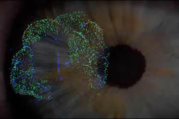 an eye and retinal cells