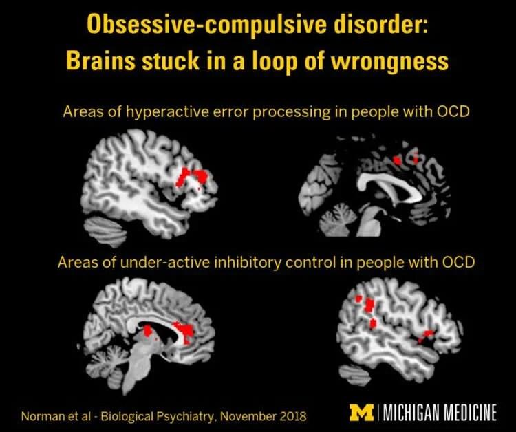 Study Reveals Roots of OCD - Neuroscience News