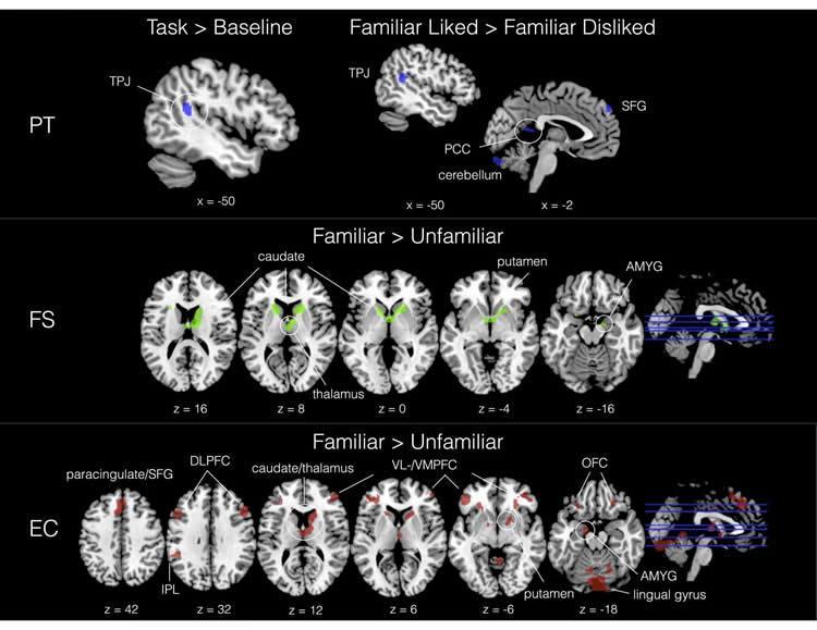 music brain scan