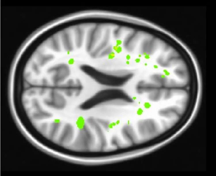 sickle cell brain scan