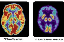 PET brain scan of an alzheimer's patient