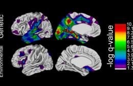 Brain scans are shown as described in the caption.