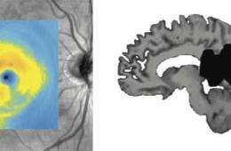 the visual cortex is shown