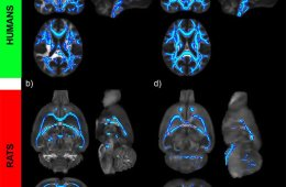 This image shows brain scans of the continued damage alcohol does to the brain