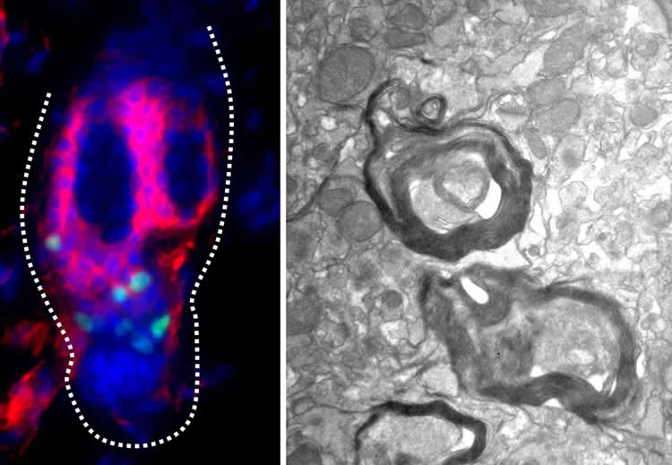 Stem cells from hair follicles have potential to repair myelin