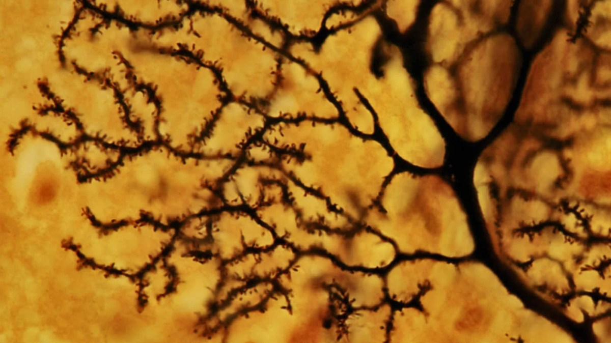 This image shows purkinje cells in the cerebellum