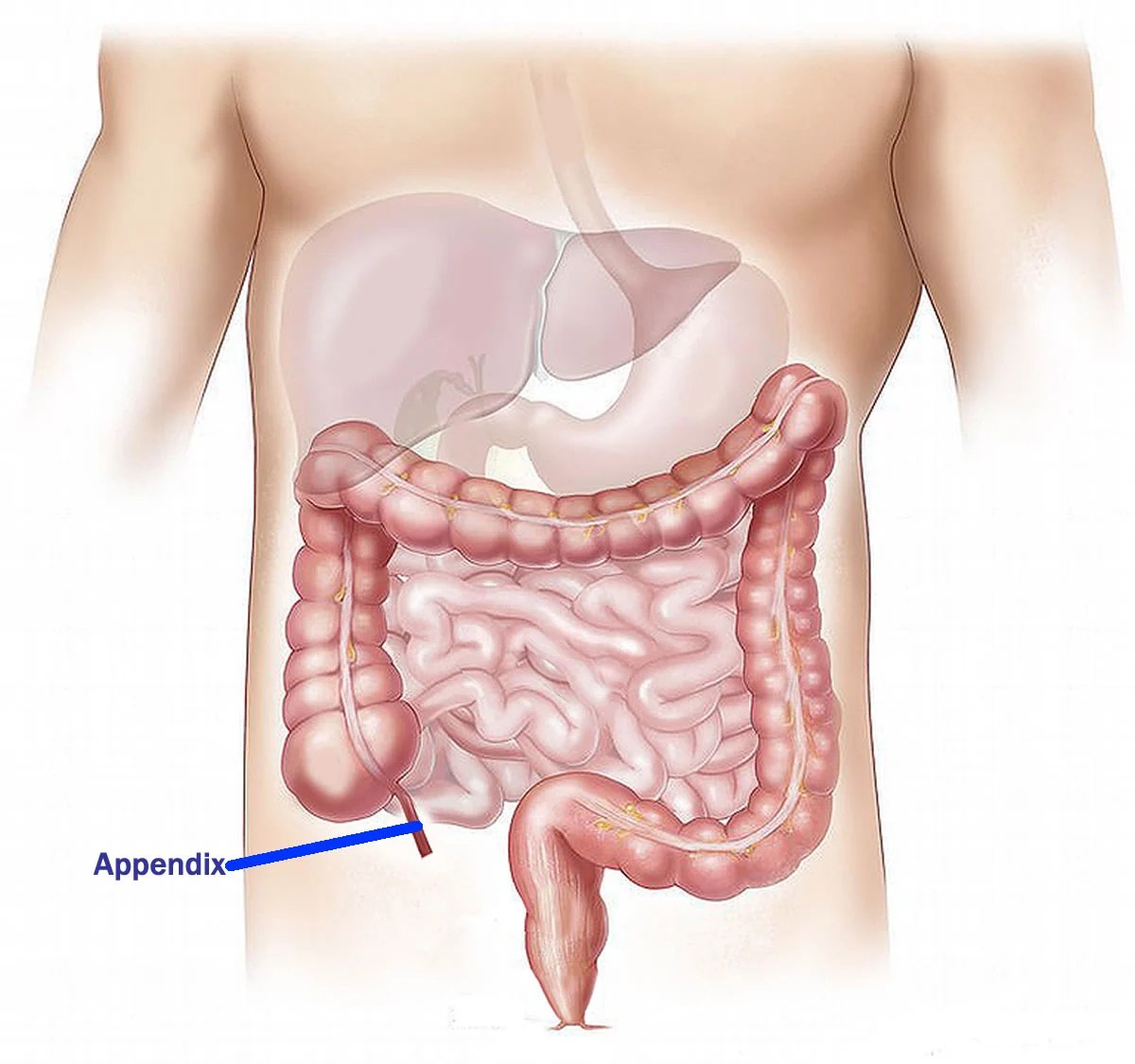 This is a diagram of the intestinal tract with the appendix labeled