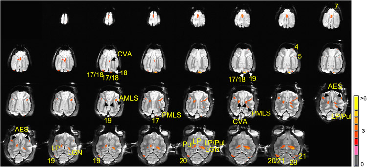 This shows the brain at different stages of brain mapping