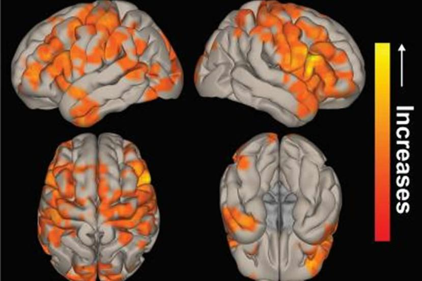 This shows brain scans following surgery for TLE