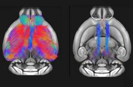 These are fmri scans of the female mice brains lacking shank3