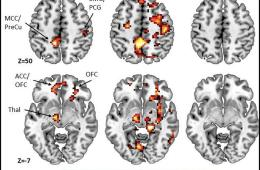This shows brain scans from teen cannabis users