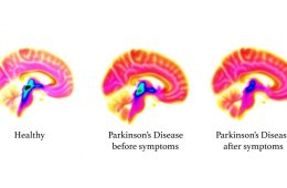 This shows PET scans of a Parkinsons brain