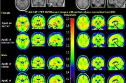 This shows PET scans